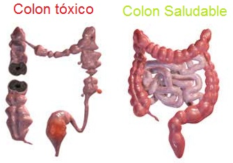 Colon-toxico-y-saludable